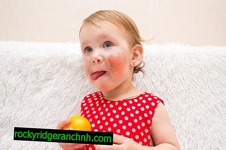 Tangerine Allergy